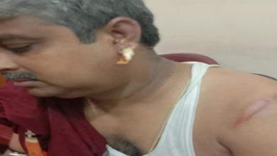Photo of নবান্ন অভিযানে পুলিশের লাঠির দাগ এখনো স্পষ্ট শরীরে, 'পরিবর্তন হবেই', দাবি বিজেপি নেতার